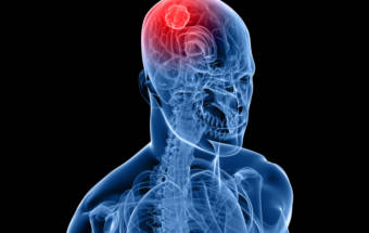Brain Cancer Symptoms – It's Not What You Think