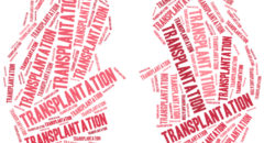 Kidney transplantation Word cloud illustration