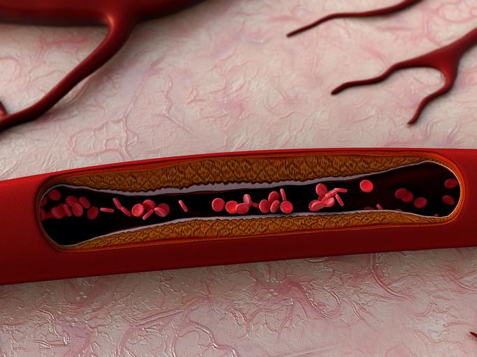 foods that unclog arteries