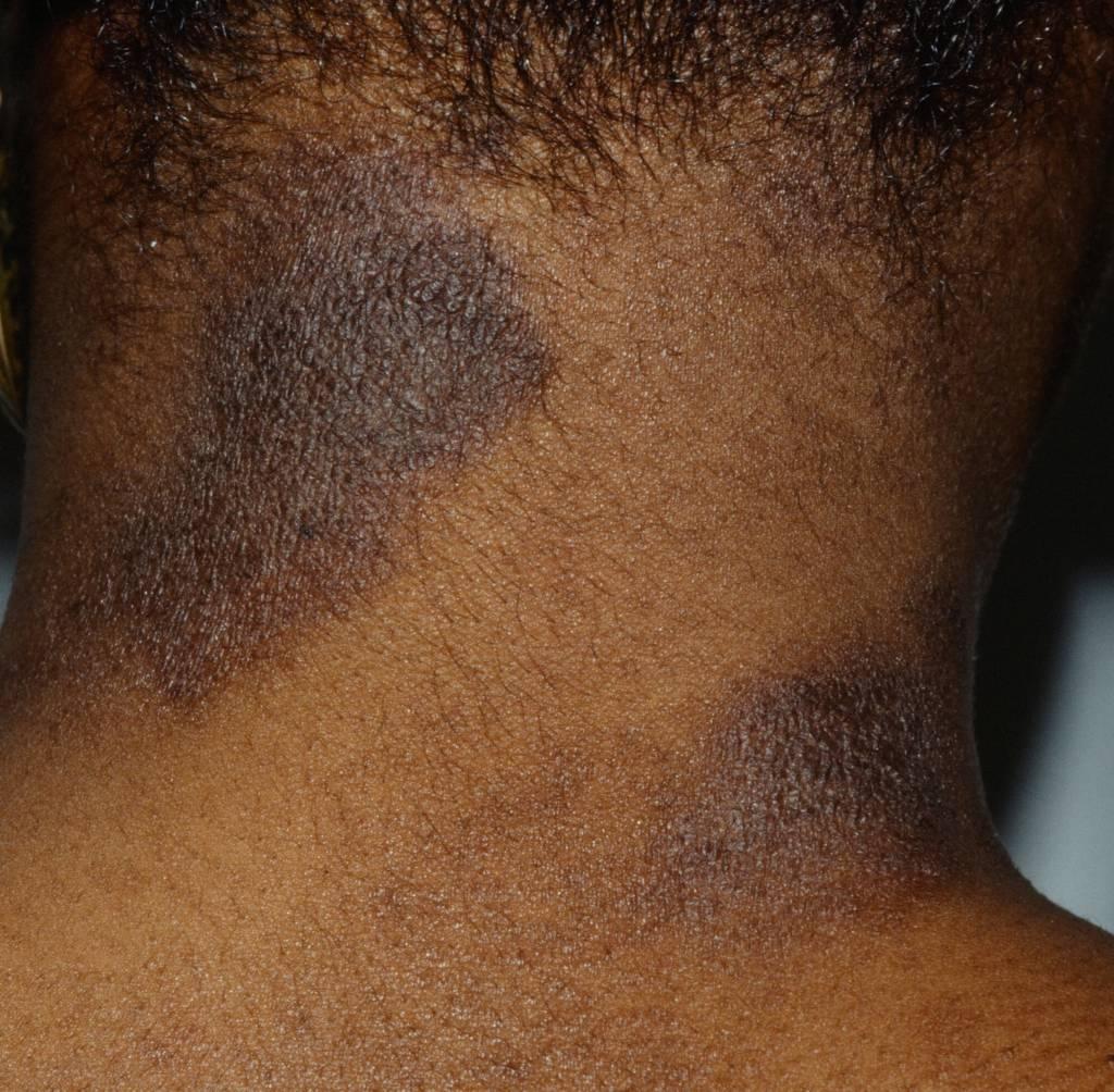 Skin Rashes on Black Skin