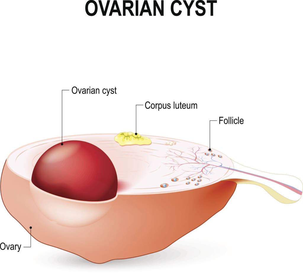 Types Of Ovarian Cysts