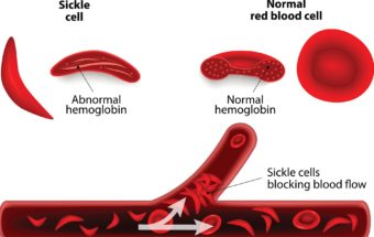 At Last, Two New Meds To Fight Sickle Cell Disease